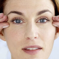 избавление от морщин вокруг глаз