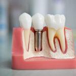 Імплантація зуба вартість